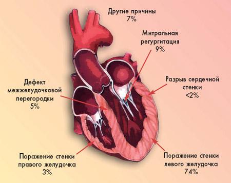 Medicine Review - Архив номеров - Кардиогенный шок у инфарктных ...